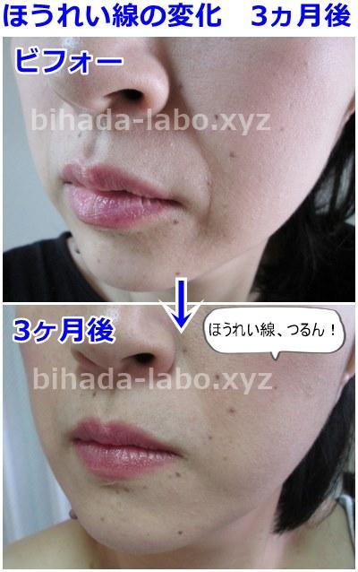 b-newa12week-hourei-3mon