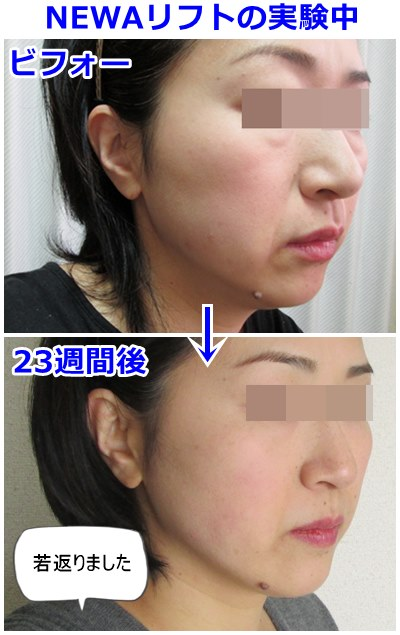 b-newa23week-before-after