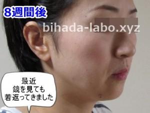 b-newa8