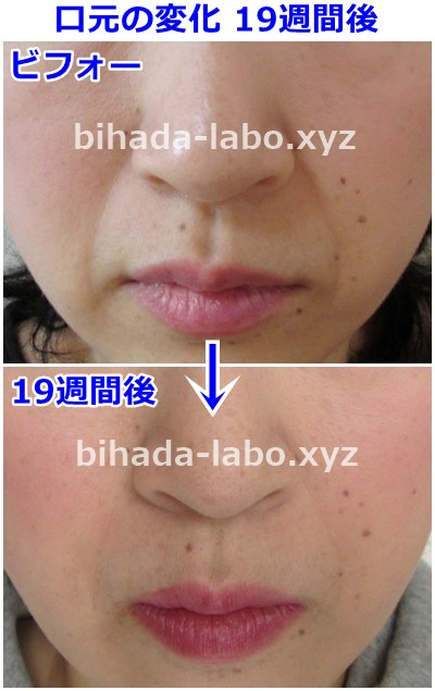b-newalift19-before-after