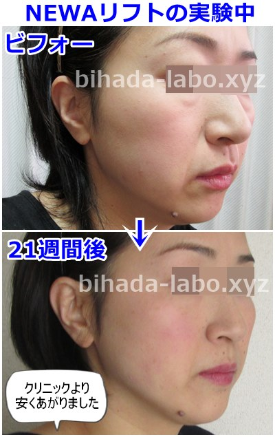 b-newalift21week-before-after