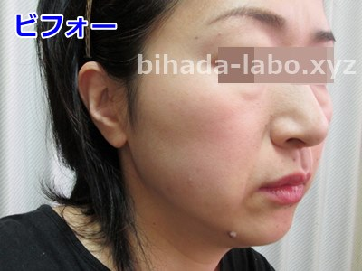 biha-newa-bef