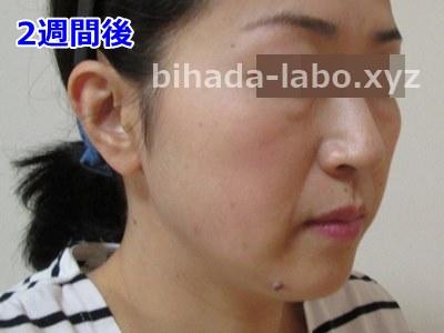 biha-newa2-bef
