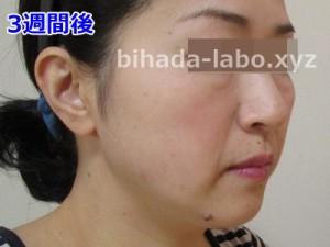 biha-newa3-be