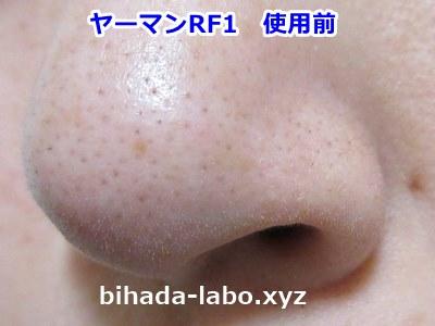 1-hana-before1